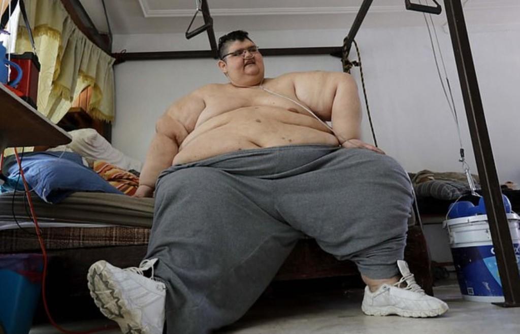 史上最胖男子「體重590公斤」破記錄 曝光「減肥2年狀況」成果超勵志!