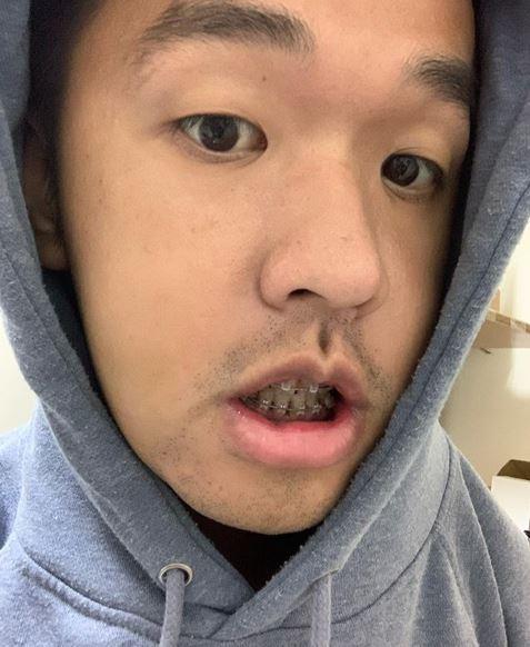 香蕉做「正顎手術」術後8天結果曝光 網驚:變成黑人!