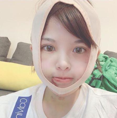 米砂自爆「削骨整形」公開術後照片 網驚訝:告別本壘板!