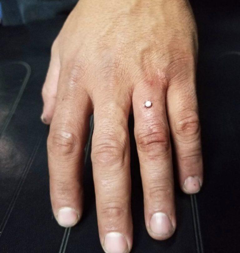 套牢對方靠這招!國外瘋「手指鑽戒」直接把鑽石嵌進去 還可以自由換顔色❤