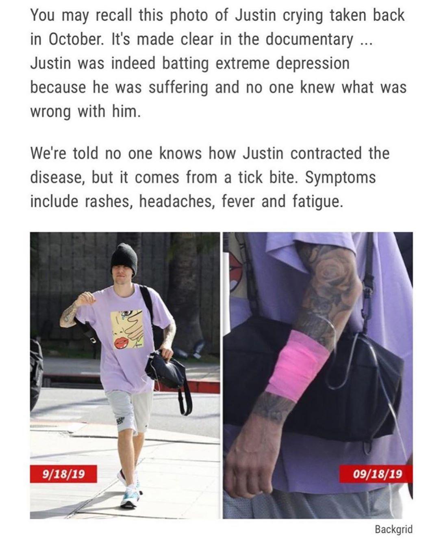 小賈斯汀自爆「罹患萊姆病」還在治療中 消失4年「過程很難熬」粉絲超擔心