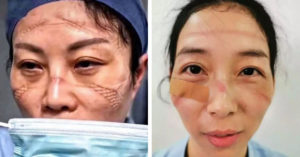 中國護士自拍「口罩戴10小時」的樣子 滿臉「傷痕累累」連廁所都不敢上!