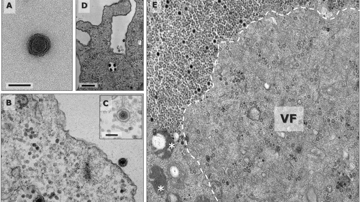 巴西驚現「神秘雅拉病毒」讓科學家憂心 「90%基因沒記錄」恐產生異變!
