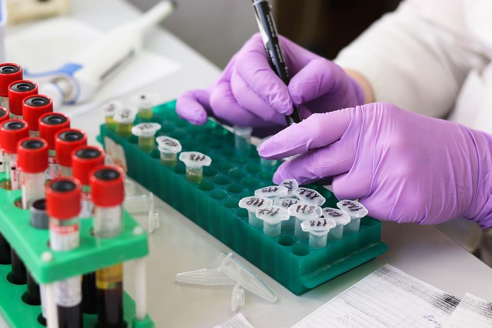 國衛院研發「快篩試劑」只要「15分鐘」就能知道檢疫結果!