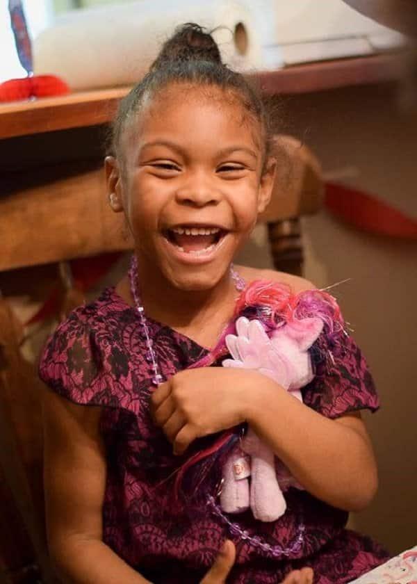 13個「一出生就照亮全世界」的早產兒微笑照 她從「瘦弱寶寶」變漂亮女孩!