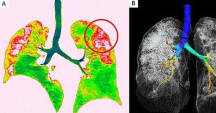 為什麼奧運該停辦?感染武肺的「X光片」公開 就算痊癒也會「永久損害」