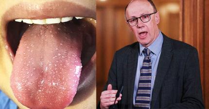 英國小孩詭異傳染病「草莓舌」超快擴散 衛生署:被耽誤了...
