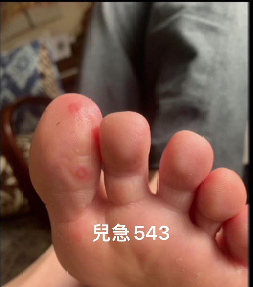 武肺又有新症狀!醫生提醒「腳趾有紅色腫塊」恐已感染