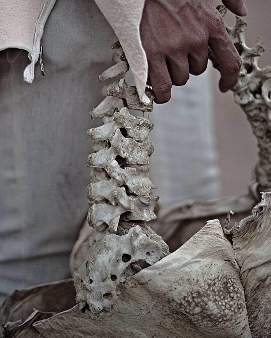 用真人「兒童脊椎」做人骨包引爭議 印尼富二代:沒違法!