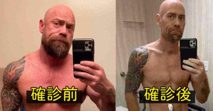 健身硬漢「確診武肺」暴瘦剩骨 曝光「染病原因」被罵:活該!