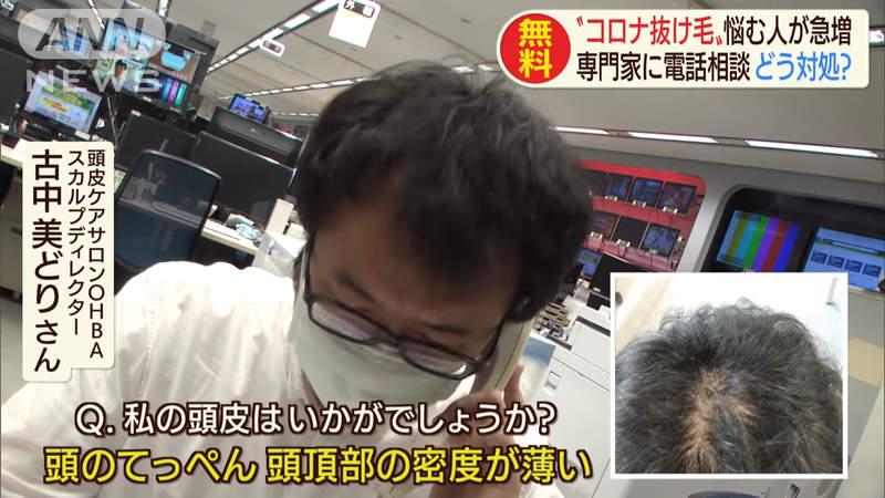 日節目爆「武肺會害人掉髮」 網友怒打臉:不要「嫁禍病毒」!
