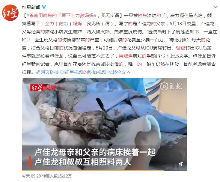 恩愛夫妻意外「嚴重燒傷」 他犧牲「求兒子先救媽」結局爆淚!
