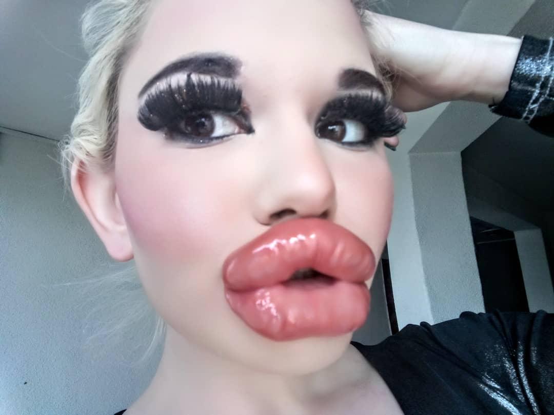 真人芭比「豐唇20次」醫生都喊停 目標「世界最厚」自誇:超可愛!