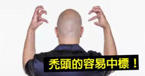 研究發現「禿頭男」變武肺指標 基因害你掉髮「還助長病毒」!