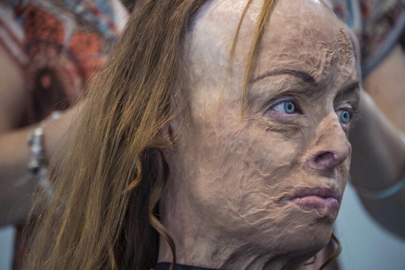 選美皇后「被大火摧毀」苦熬100次手術 勇敢「脫掉遮掩」重生