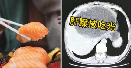 男子發燒送醫驚覺「左肝被吃光」他嚇瘋:4個月前有吃生魚片