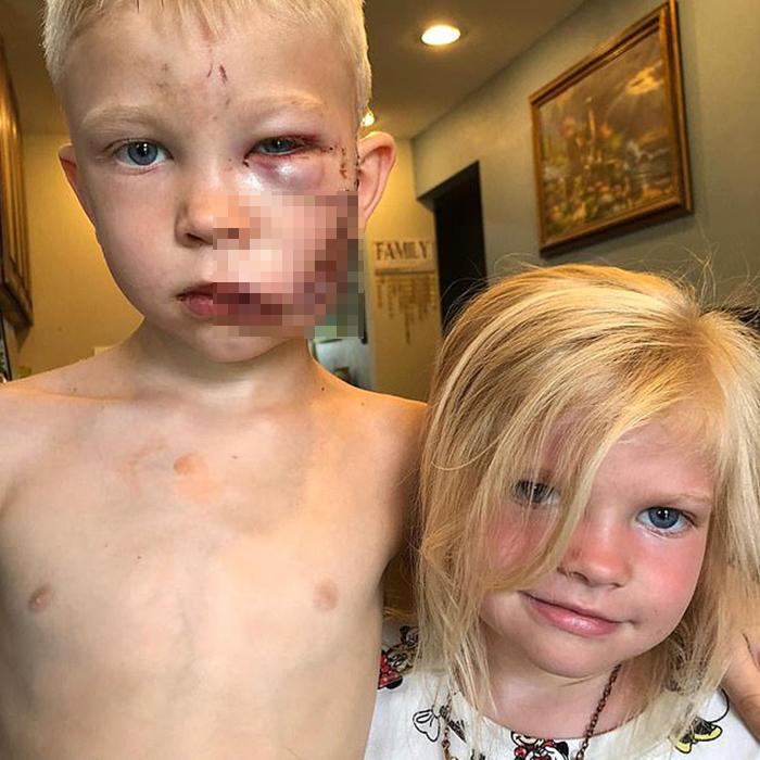 6歲童「捨身救妹妹」被狗咬成重傷 美隊暖送「英雄盾牌」致敬