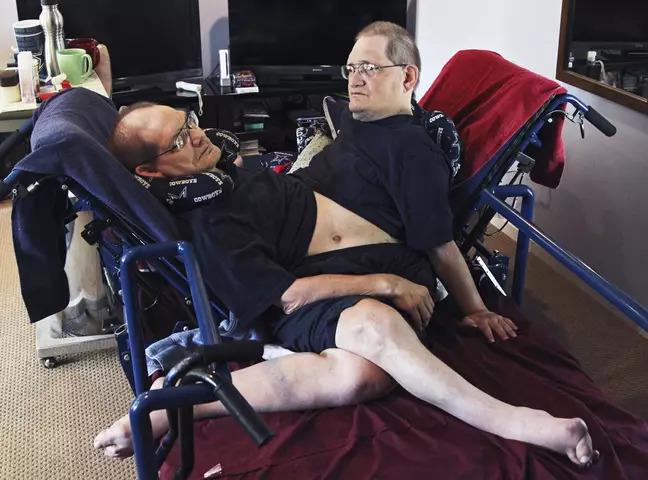 被當怪胎!「世界最老連體嬰」靠馬戲團養活彼此 高齡68歲去世