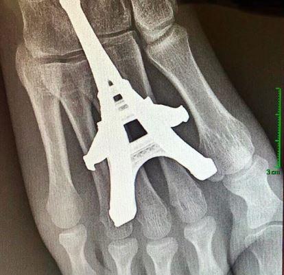 他光腳踩「鐵塔模型」插入腳掌 網看「X光照」傻眼:已經到巴黎