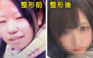 25歲女生花「400萬全臉變身」 開灰姑娘公司發誓拯救世人