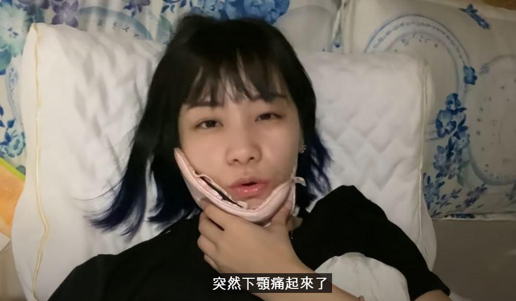 影/正妹大胃王曝「牙齒神經快抽光」 原因竟是「吃太多」!