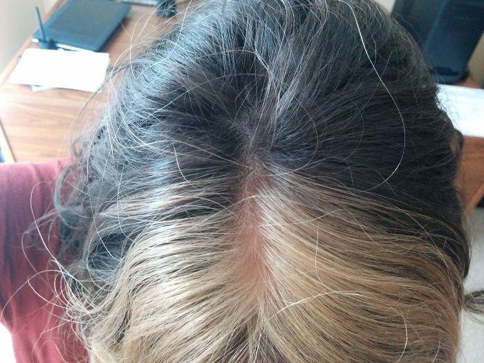 20個「被上帝挑選過」的特殊基因人類 怎麼梳都不整齊的頭髮!