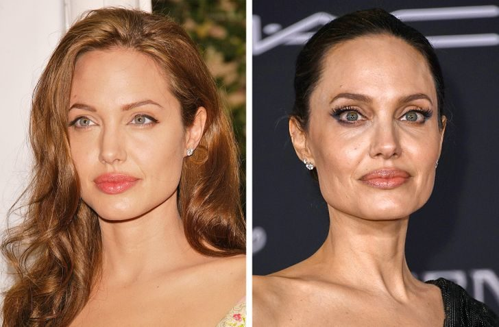 女性老化跡象