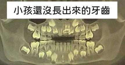 12張「原來這個東西長這樣!」驚人X光照 蛇的骨頭超美!