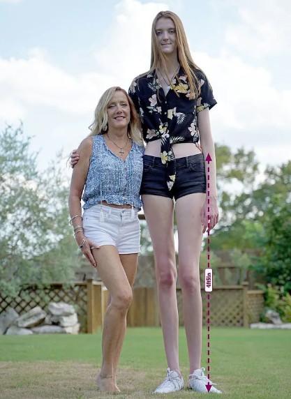 金氏紀錄最長!17歲正妹擁「135公分美腿」 高中可怕經歷卻讓她超消沉