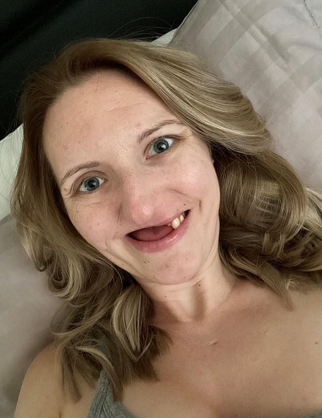 一直牙痛!正妹就醫「拔11顆牙」後被離婚 她樂觀不放棄還交到新男友