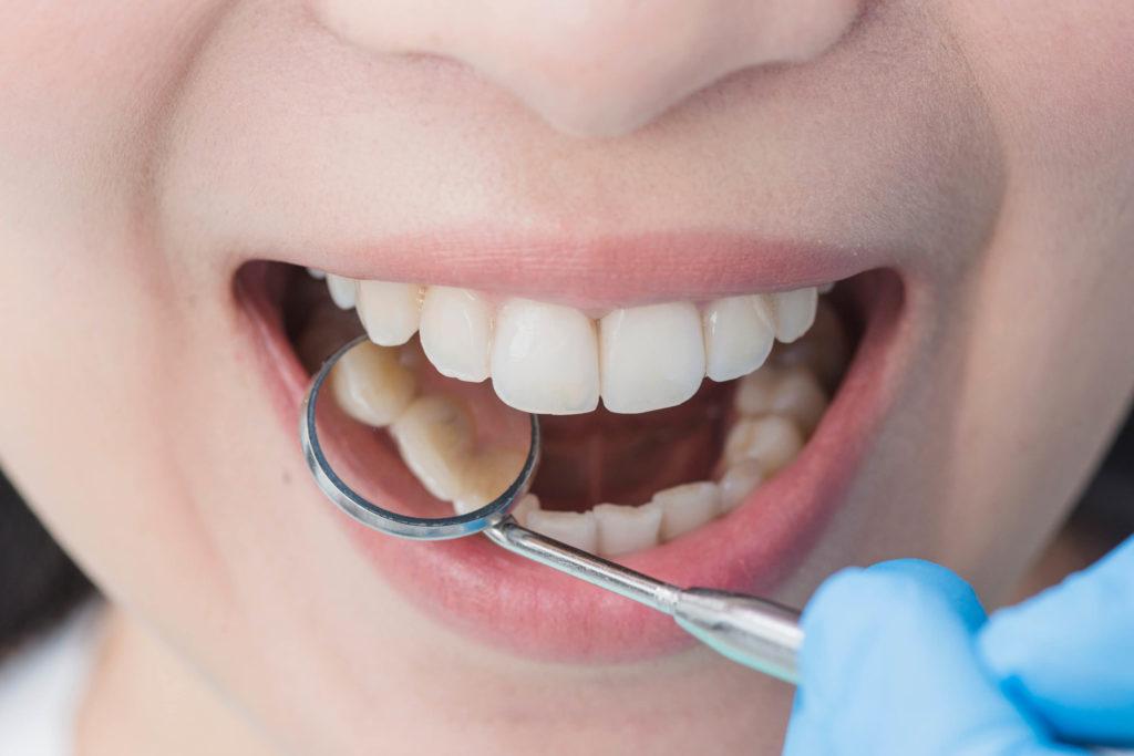 現在小孩都「沒有智齒」?最新研究驚喜發現:人類已進化