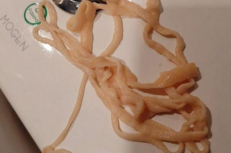 明明沒吃金針菇...他拉出「9公尺麵條」嚇壞:還會蠕動!