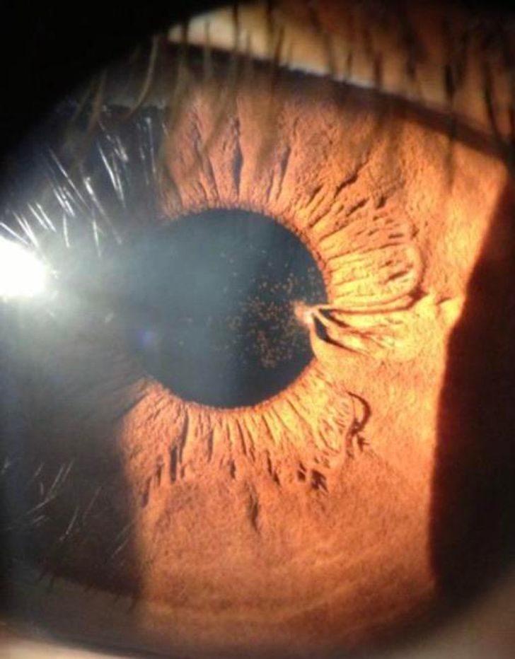 18個得到老天寵幸的「基因頭獎」人類 「眼睛有雀斑」超像地圖!