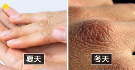 7個「冬天偷偷影響你」的地方 比較好減肥、皺紋會變多?