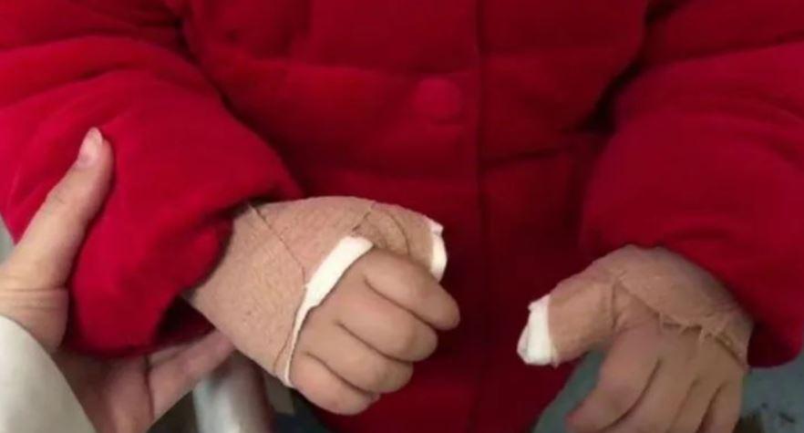 玩手機孩子就會乖!3歲女「手指無法伸直」 看醫生診出可怕問題