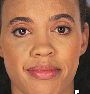 幼時被狗咬「拿下面」移植皮膚 30歲嫩媽臉上長「QQ捲毛」超尷尬!