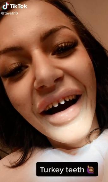 網紅瘋「口腔美容術」想擁有完美笑容 牙醫嚇壞:你10年就會後悔!
