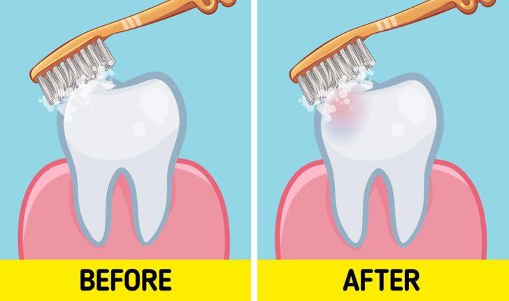 「吃早餐後刷牙」是錯的!牙醫警告:30分鐘內刷「牙會壞掉」