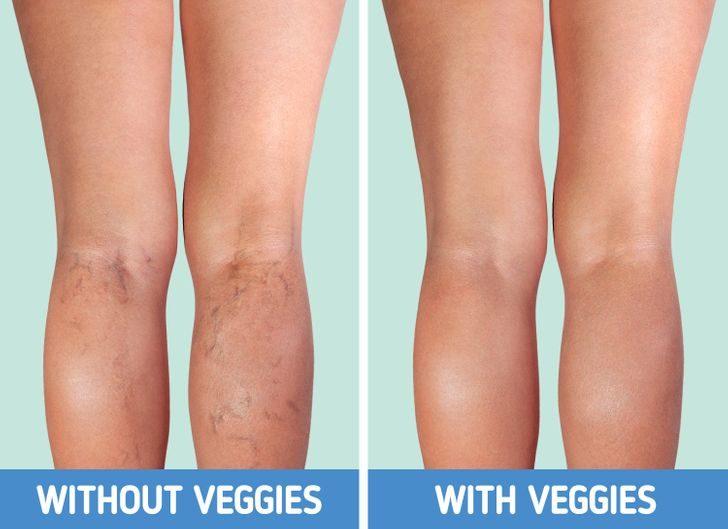 8個「不吃蔬果」對身體的影響 全身「發臭」後悔也來不及