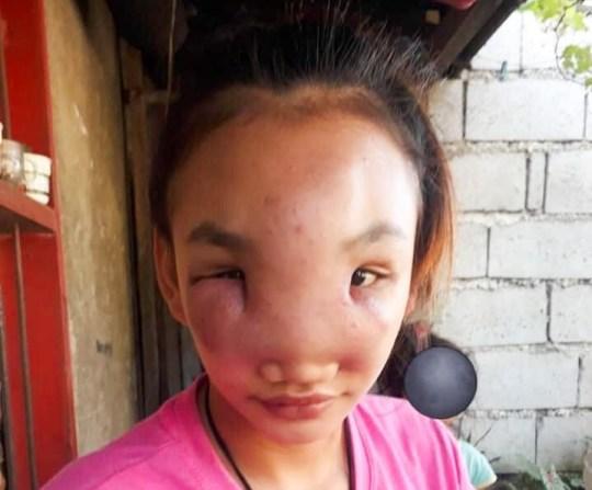 17歲少女「臉上長痘痘」忍不住 擠下去後「擴大腫脹」痛到失明!