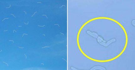 常常看天空「眼睛出現白線」是蟲蟲嗎?專家解答:看藍天才會有