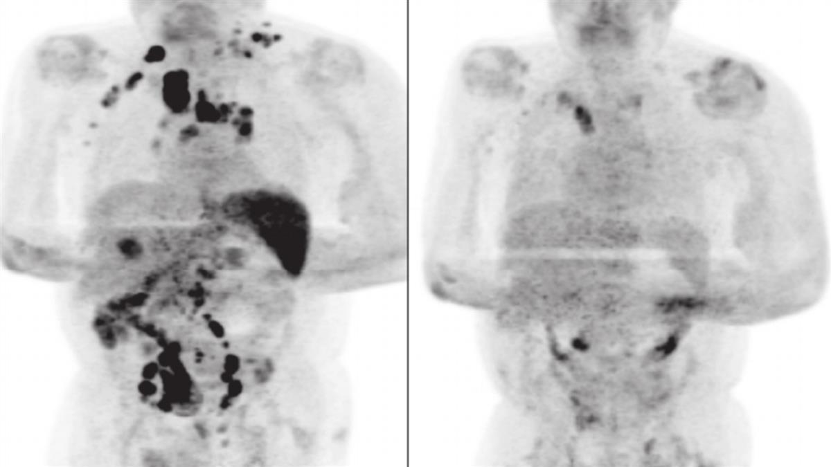 以毒攻毒?60歲老翁染疫後「腫瘤離奇消失」 專家嚇壞解答了