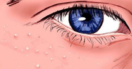 眼睛附近長「白色點點」是什麼?如果「手癢想擠」後果很嚴重