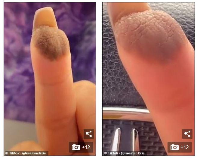 2歲夾到手指 從此每天長「QQ尷尬毛」!皮膚科醫曝原因:拿下面移植