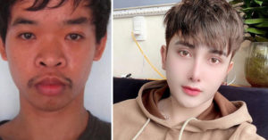 因為外貌做不到「夢幻工作」 26歲男「花50萬動刀」換臉:有自信就是美