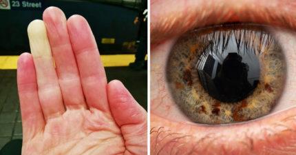 美麗的錯誤?20個不可思議「肉體變異」 移植角膜後像「生化人」