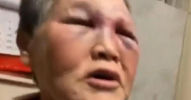 美國街頭遭無故痛打!亞裔嬤「木棍反擊」對方躺著送院 痛哭喊冤:他欺負我