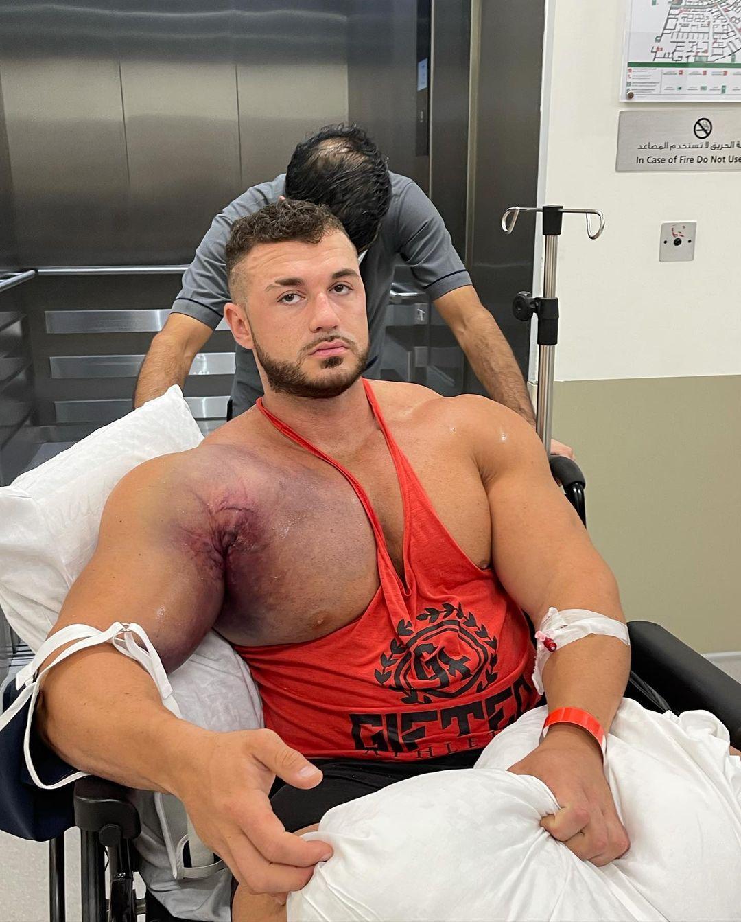 影/猛男臥推220公斤「右胸突隆起」 慘叫「撕裂了」一片黑紫