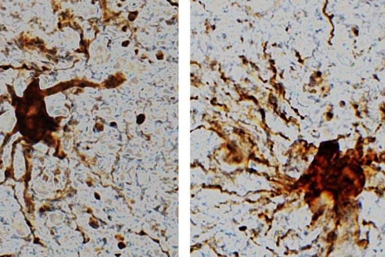 「殭屍基因」真的存在!研究發現死後「人腦還在運作」 細胞12小時快速增長