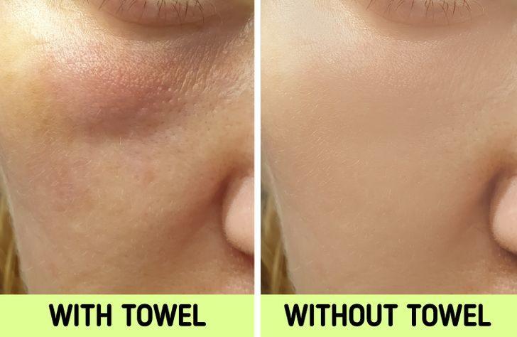 毛巾擦臉壞處